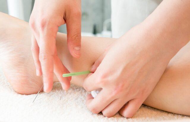 不妊と鍼灸治療
