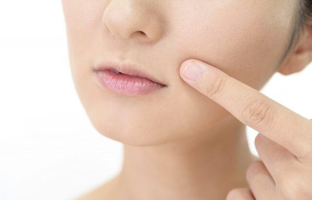 顔面神経麻痺の後遺症